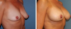 breast-augmentation-p1-o
