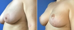 breast-reduct-05
