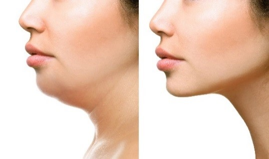 neck liposuction san diego