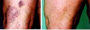 broken capillaries treatment san diego