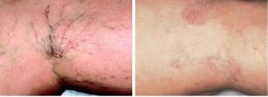 rosacea skin treatment san diego