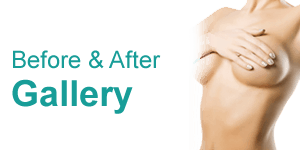 Breast Before & After Gallery