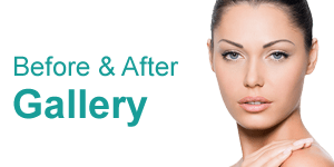 Skin Before & After Gallery