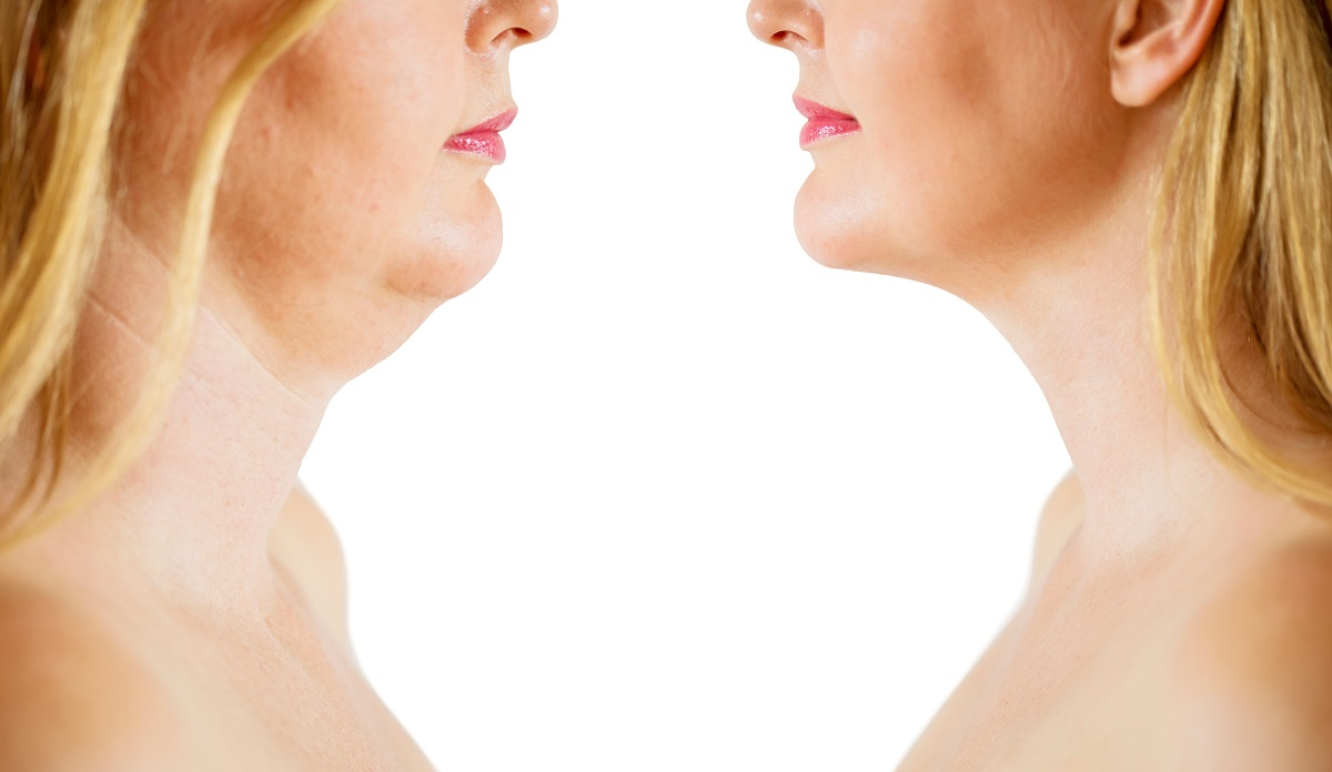 Neck Lift in San Diego & La Jolla