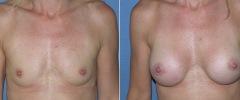 breast_b_a_3