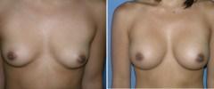 breast_ba_1