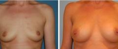 breastaug-p1-i1